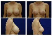 breast-lift-15
